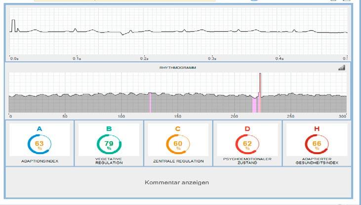HRV Analyseergebnisse 1